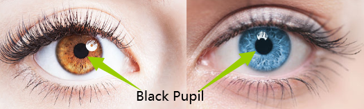 pupil is black